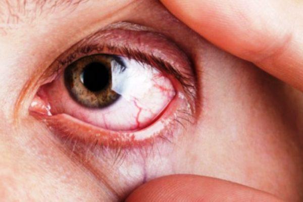 Glaucoma: Cómo diagnosticar al enemigo silencioso